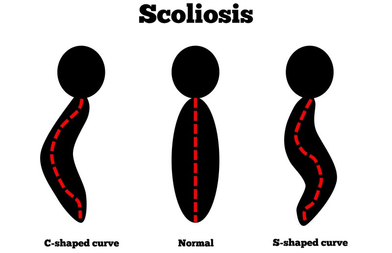 Belfast, UK scoliosis treatment